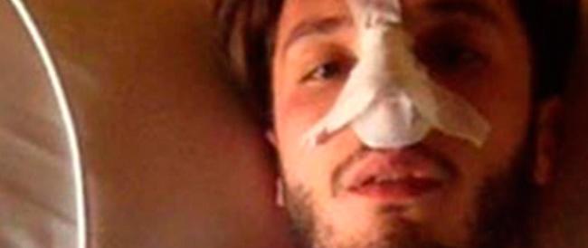 """Rapper minacciato e pestato: aveva spopolato il video contro i """"fighetti"""" della movida cagliaritana"""