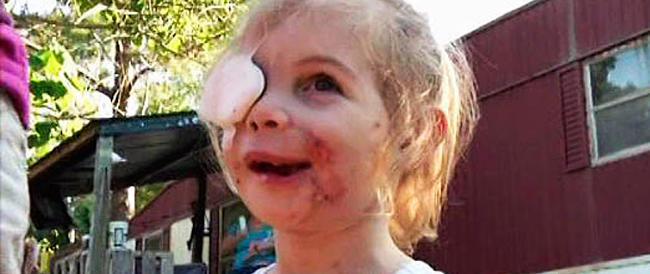 La storia della bimba sfigurata che ha commosso l'America forse è falsa. Ed è polemica
