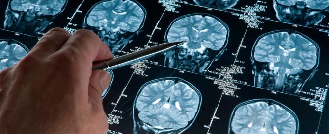 Alzheimer: è lo stile di vita che può aiutare a contrastare la malattia