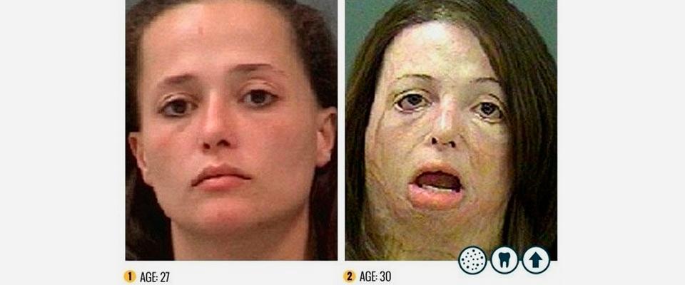 La droga shaboo in italia sul web le terribili immagini - Sali da bagno droga effetti ...