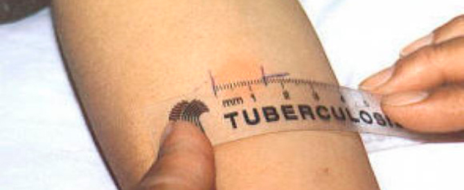 In Italia il 4 per cento dei casi di tubercolosi ha colpito i bambini