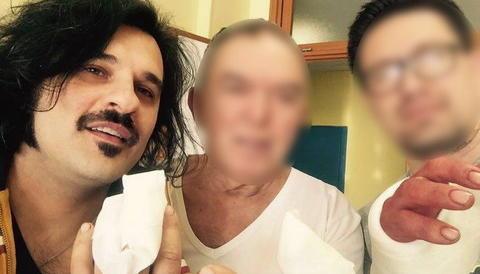 Mauro Marin si è tagliato due dita con la sega e pubblica le foto: eccole (Fotogallery)