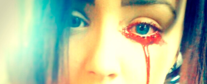 Una ragazza inglese sanguina dagli occhi: la scienza si è quasi arresa…