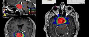 Tra tumori e telefonini il legame c'è. E un maxi studio Usa ora lo dimostra