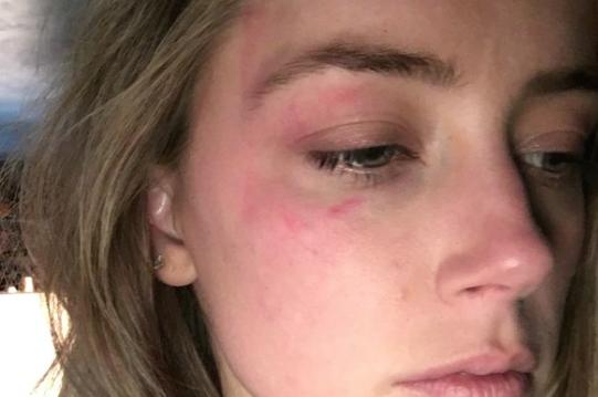 Johnny Depp picchia la moglie: deve stare alla larga da lei che mostra i lividi