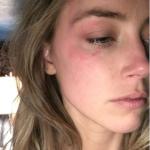 La foto.-denuncia di Amber. Ha chiesto il divorzio dal marito Johhny Depp.  (Foto Facebook, Instagram)