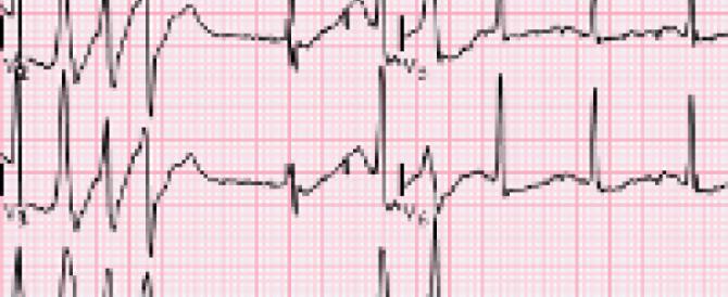 Una pastiglia e un orologio da polso per l'elettrocardiogramma fai da te