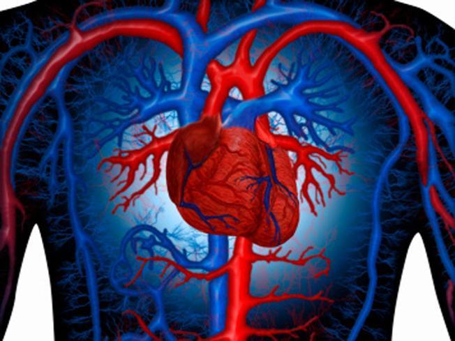 Infarto, ictus e arterosclerosi, c'è una svolta: trovato il gene killer