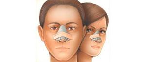 Per un naso rifatto o un seno a Savona si inventavano pure falsi tumori