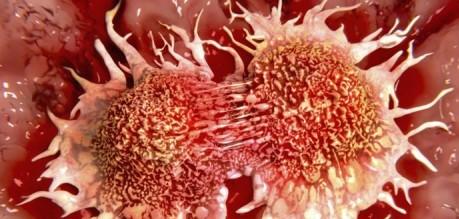 Il cancro fa meno paura: in 10 anni i sopravvissuti sono aumentati del 40%