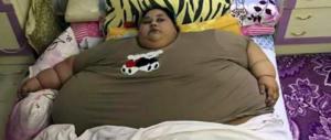 Donna egiziana di 36 anni pesa 500 kg: adesso sarà operata in India (video)