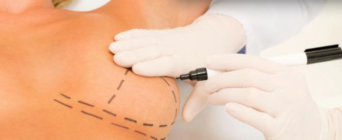 Protesi al seno, nuovi casi di mortalità per cancro tra le donne operate
