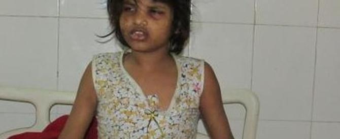 """Una bimba di 8 anni come """"Mowgli"""": viveva nella foresta con le scimmie"""