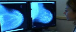 Cancro al seno: identificata la proteina che attiva le metastasi. Scacco al male? (video)