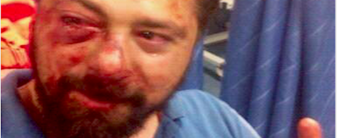Napoli, rapinato e pestato a sangue, posta su Fb la foto: «Sorrido, sono vivo»