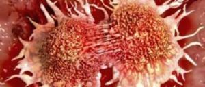 Tumori, quelli dell'uomo restano tabù: dall'urologo solo 2 maschi su 10