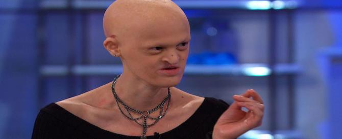 È calva, cieca e senza denti: si chiama Melanie Gaydos ed è il nuovo volto della moda
