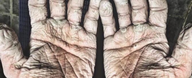 Foto choc delle mani di un canottiere: quando l'acqua penetra nella pelle