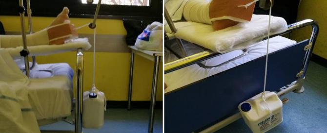 Nuovo scandalo sanità a Napoli: la gamba rotta sollevata con una tanica