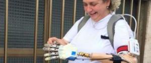 «Sono la prima donna con la mano bionica»: la storia di Almerina