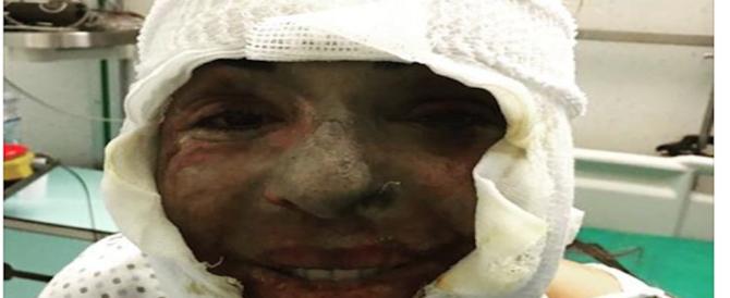 Gessica Notaro mostra la sua foto di un anno fa: ecco, in ospedale mi svegliai così