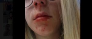 «Per 10 euro un marocchino mi ha spaccato il naso e le labbra»