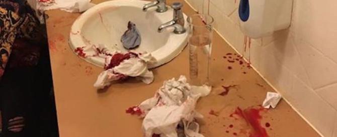 Fidanzata gelosa spacca la testa a una donna nel bagno di un pub