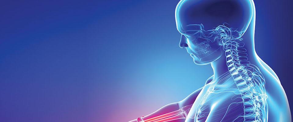 Osteoartrite: cos'è e come si cura