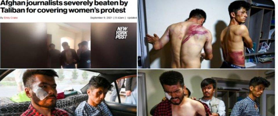 Torture gornalisti